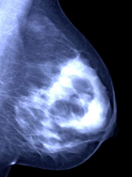 Vaccine to treat breast cancer | Marie Claire